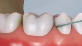 چطور نخ دندان بکشیم؟