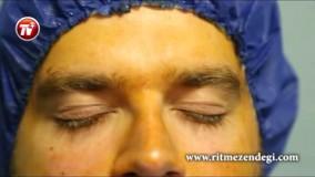 جراحی لازیک؛ برای آنها که می خواهند از شر عینک راحت شوند
