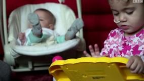 معضل جدید پزشکی مراقب خوردن باطری ها توسط کودکان باشید