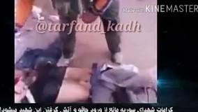 شهید مدافع حرم که داعشی ها نه میتونن چاقو تو بدنش فرو کنن نه آتش میگیرد