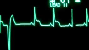 آخرین تلاشهایی که قلب یه آدم واسه برگشت به زندگی انجام میده به تعداد ضربان قلب در دقیقه توجه کنید.چق