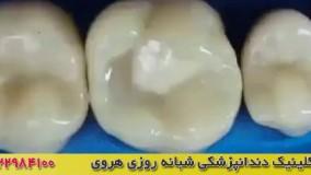 فیلم ترمیم دندان با کامپوزیت دندان