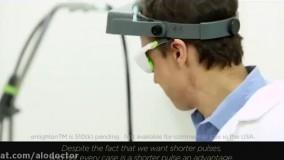 لیزر الکس کوترا با تکنولوژی الکس سرد