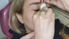 برداشتن گچ پس از جراحی بینی