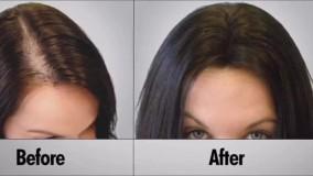 ضخیم کننده مو، جلوگیری از ریزش موهای سرعت رشد مو در 2 هفته در خانه