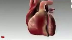 سکته قلبی چه طور اتفاق می افتد؟
