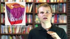 زگیل تناسلی چگونه درمان میشود-چرا اکثر درمان ها اثر ندارند؟