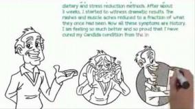 درمان عفونت قارچی واژن- قسمت -34-درمان خانگی عفونت واژن