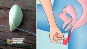درمان خانگی عفونت واژن- قسمت -24-قارچ در واژن