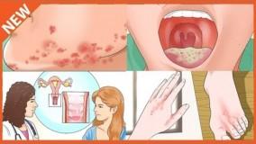درمان خانگی عفونت واژن- قسمت -23-قارچ در واژن