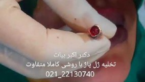 تزریق ژل لب اپارات-فیلم تخلیه ژل پاژ از لب در کلینیک زیبایی دکتر اکبر بیات