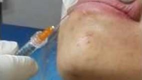 تزريق ژل گونه-دکتر علی قربانی حیدری