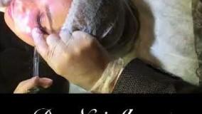 تزریق ژل  به گودی زیر چشم