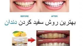 ارزان ترین راه جرم گیری و سفید کردن دندان های زرد در خانه