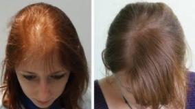 ۵ درمان برای ریزش، تقویت و رشد مو