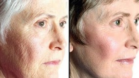 #1 ماسک برای پوست خشک