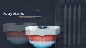 آموزش ترمیم زیبایی دندان