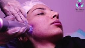 انجام لیزر فرکشنال آر اف توسط دستگاه اسکارلت در مطب پوست و زیبایی اُوکابویتی