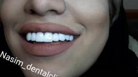 درمانگاه دندانپزشکی نسیم قیطریه - دندانپزشکی زیبایی – ارتودنسی – ایمپلنت – ونیرکامپوزیت – کاشت دندان – اصلاح طرح لبخند –