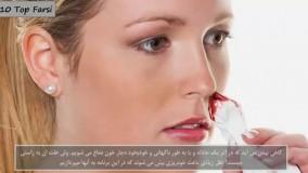 دانستنی های عجیب-دلایل خون دماغ شدن
