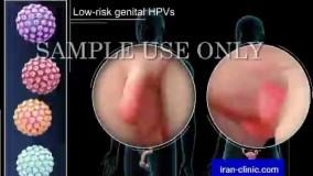 شکل ظاهری و عکس زگیل تناسلی در زنان و مردان در ایران کلینیک