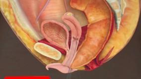 درمان فیستول با لیزر و جراحی در ایران کلینیک