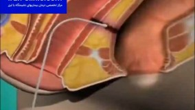 مزایای درمان فیستول با لیزر در ایران کلینیک