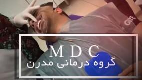 شکست ایمپلنت بعد از جراحی|کلینیک دندانپزشکی مدرن