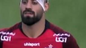 شکستن سر بازیکن با سنگ تماشاگر در بازی دربی-محمد حسین کنعانی زادگان