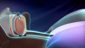 از خرو پف شریک زندگی خود خسته شده اید، با درمان خروپف آشنا شوید! - بیچشک
