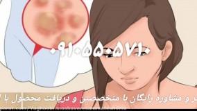 ویروس HPVچیست ؟  درمان آن به چه صورت است