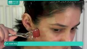 کلاژن سازی پوست صورت با انجام میکروندلینگ صورت
