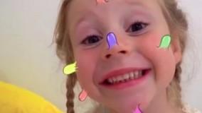 ناستیا و جوشهای بزرگ خنده دار روی صورتش
