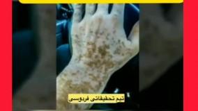 بیماری پوستی پیسی چیست؟