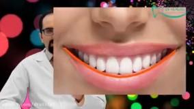 لبخند هالیوودی چیست ؟