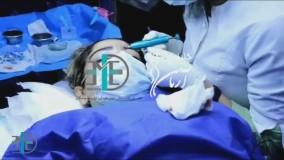 کاشت مو به روش SFT برای اولین بار در کلینیک تخصصی آریامن