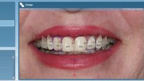 آموزش طراحی لبخند با استفاده از نرمافزار توسط دکتر آشتیانی در کشور کانادا
