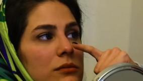 تزریق بوتاکس در کلینیک زیبایی