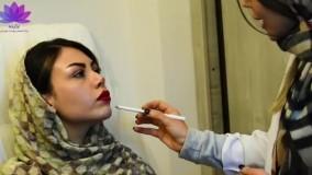 تزریق ژل چانه و زاویه سازی در کلینیک ارکیده