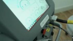 لیزرموهای زائد با دستگاه الکساندرا کندلا درکلینیک ارکیده