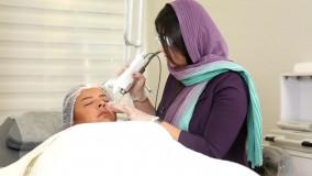 درمان افتادگی پلک و خطوط دور چشم