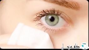 چطوری گودی زیر چشم را درمان کنیم؟