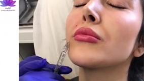 تزریق ژل لب در کلینیک ارکیده