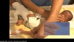 آموزش رگ گیری در اطفال