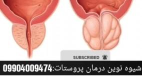 روش نوین درمان پروستات چه کسانی دچار این بیماری میشوند؟