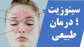سینوزیت و طریق های طبیعی درمان
