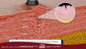 لیزر درمانی با فتونا برای از بین بردن جای زخم و بخیه و التهاب های پوستی