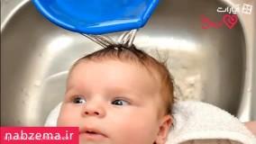 مراقبت از پوست نوزاد با این راهکارها