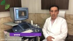 آیا سونوگرافی سه بعدی برای جنین ضرر دارد؟