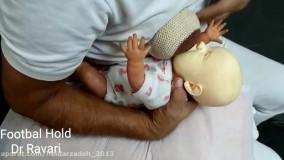 روش های وضعیت شیر دادن زیر سینه در نوزادان نارس